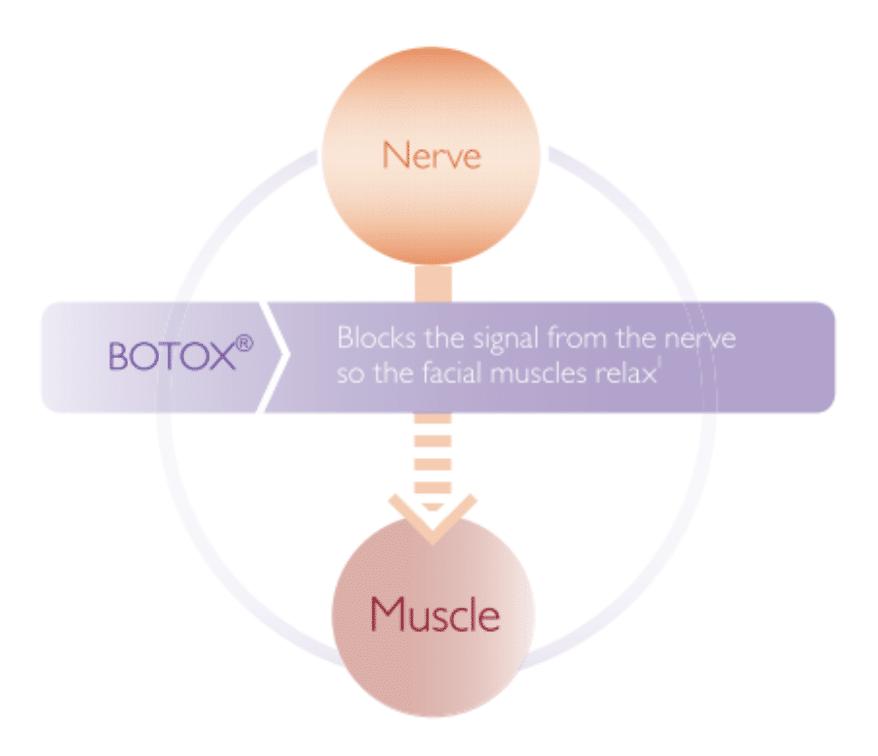 botox-2